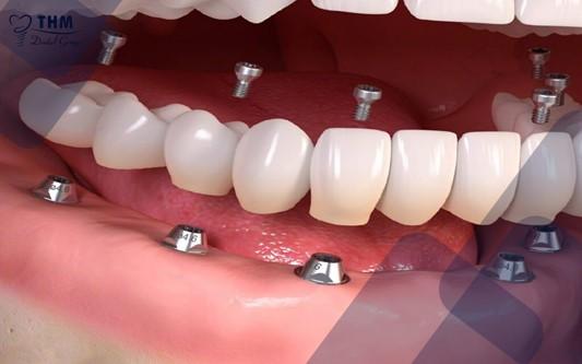 Kỹ thuật trồng răng Implant toàn hàm