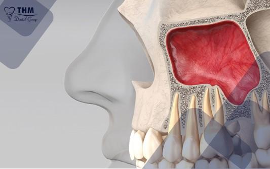 Nâng xoang hở khi cấy Implant