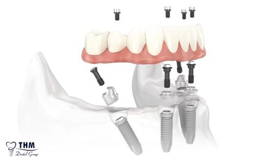 Những đối tượng nên và không nên lựa chọn cấy ghép răng Implant All on 4