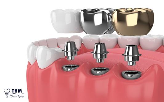 Những lưu ý cần nhớ trước khi cấy ghép Implant đơn lẻ