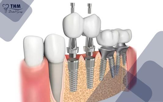 Những ưu điểm nổi bật của trụ Implant Osstem