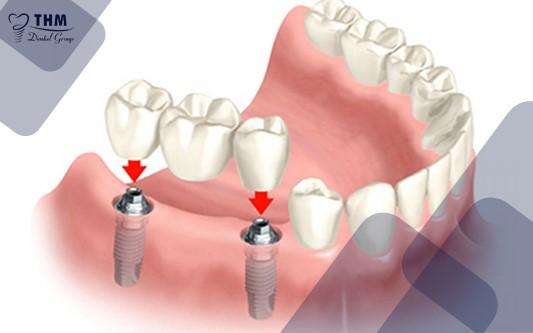 Phương pháp cấy ghép răng sứ trên nền trụ Implant