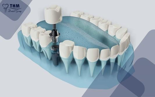 Quá trình diễn ra phẫu thuật Implant