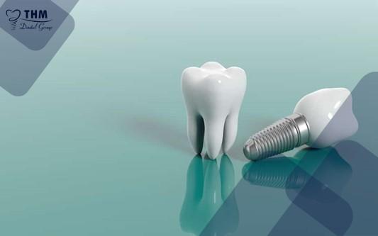 Quy trình cấy ghép răng Implant về ngay trong ngày