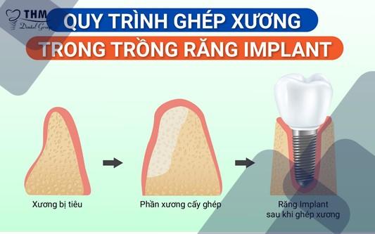 Quy trình cơ bản nhất về phương pháp ghép xương trong trồng răng Implant