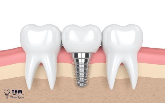 Quy trình thực hiện cấy ghép răng Implant All on 4