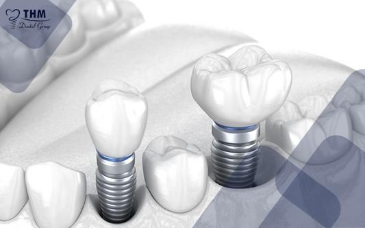 Tiêu chuẩn về số lượng xương hàm khi làm răng Implant