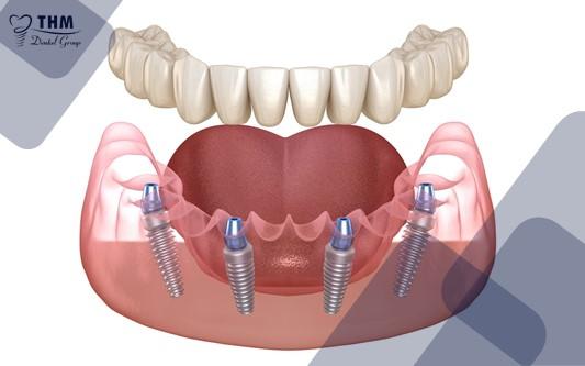 Tổng quan về cấy răng Implant All on 4
