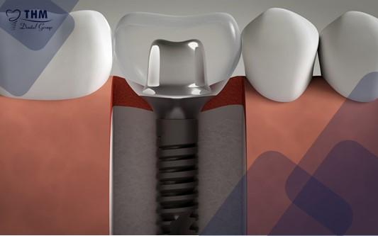 Ưu điểm của khớp nối Abutment Implant