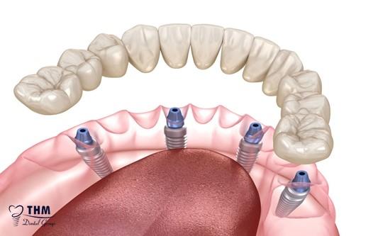 Ưu điểm thiết thực của cấy ghép răng Implant All on 4