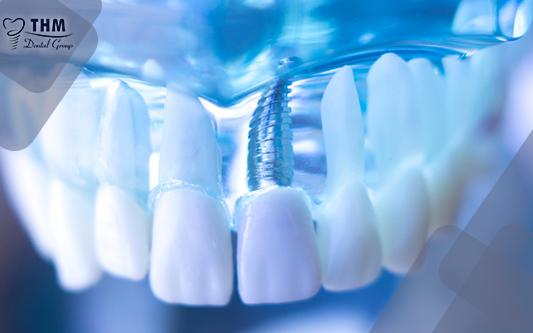 Implant răng cửa – phương pháp an toàn mà hiệu quả